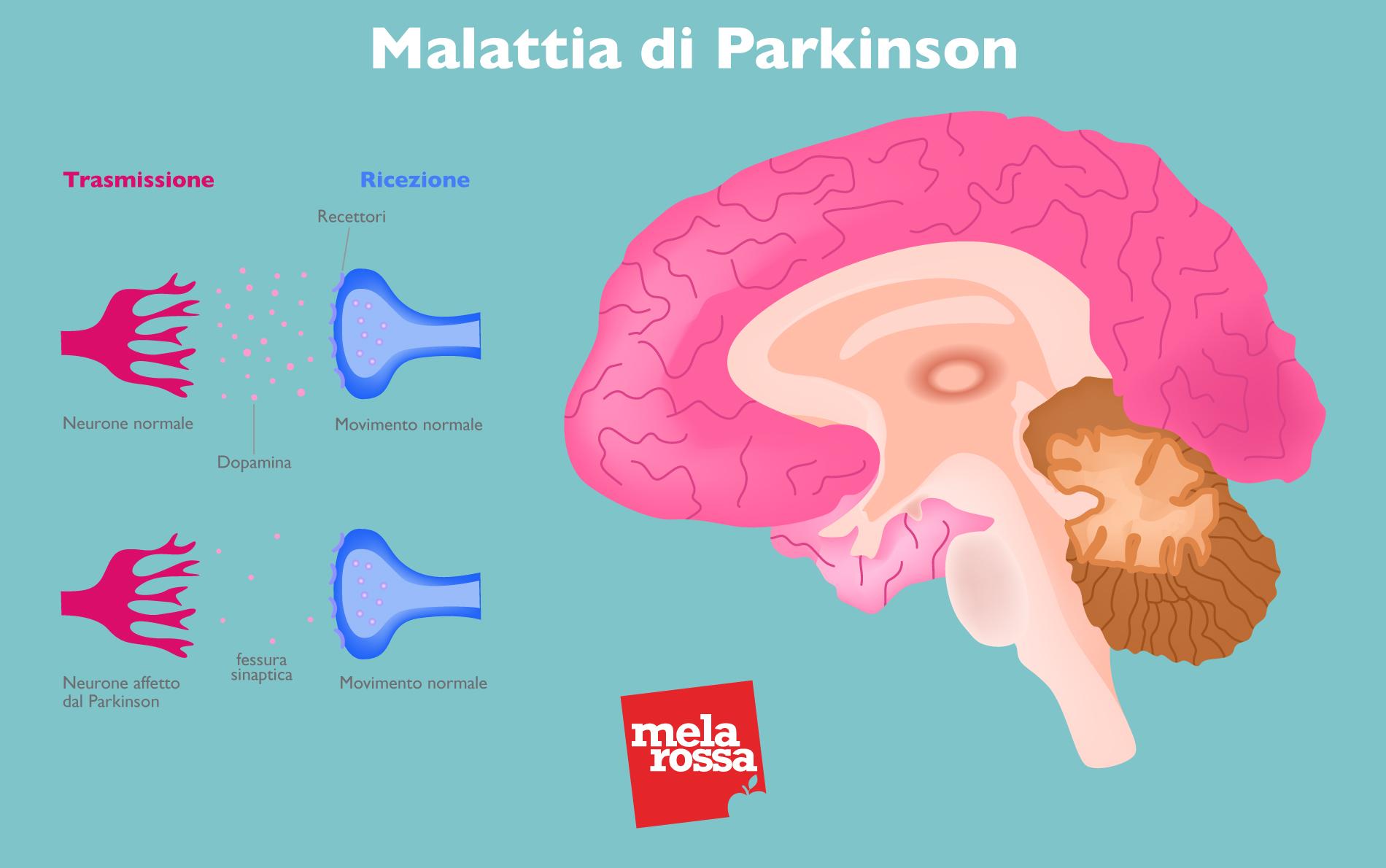 enfermedad de parkison: cerebro