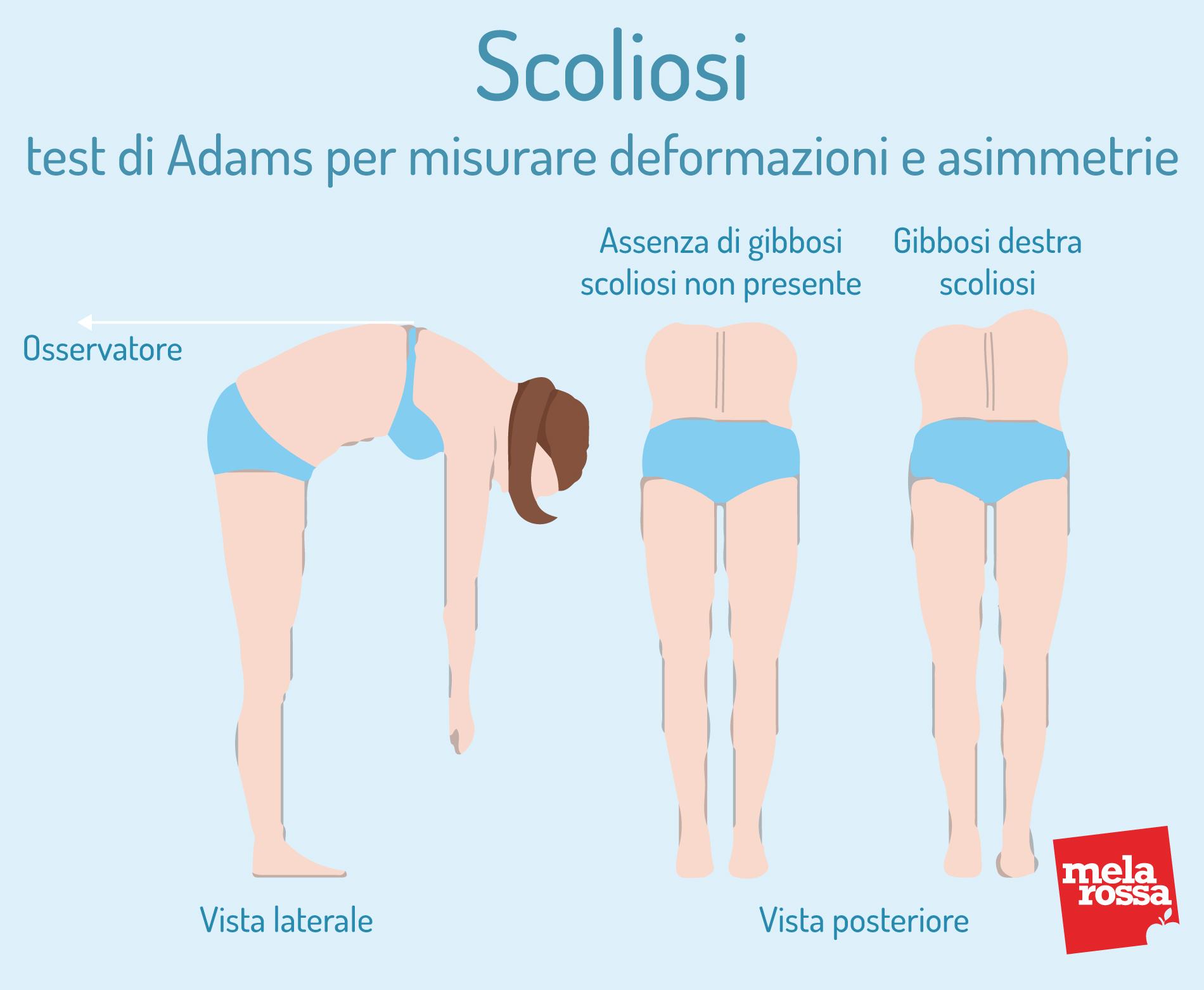 Escoliosis: prueba de Adams para medir deformaciones