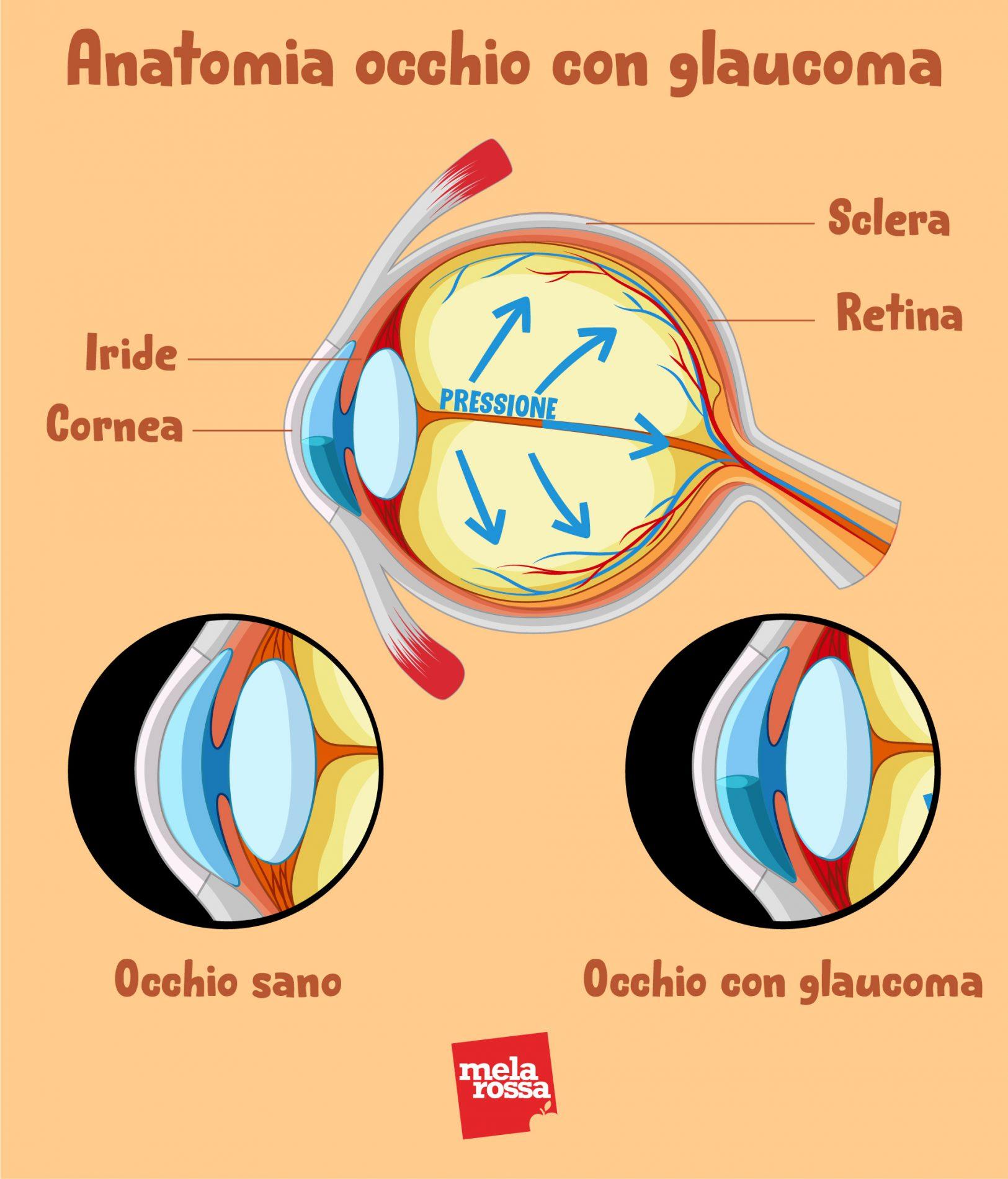 anatomía del glaucoma