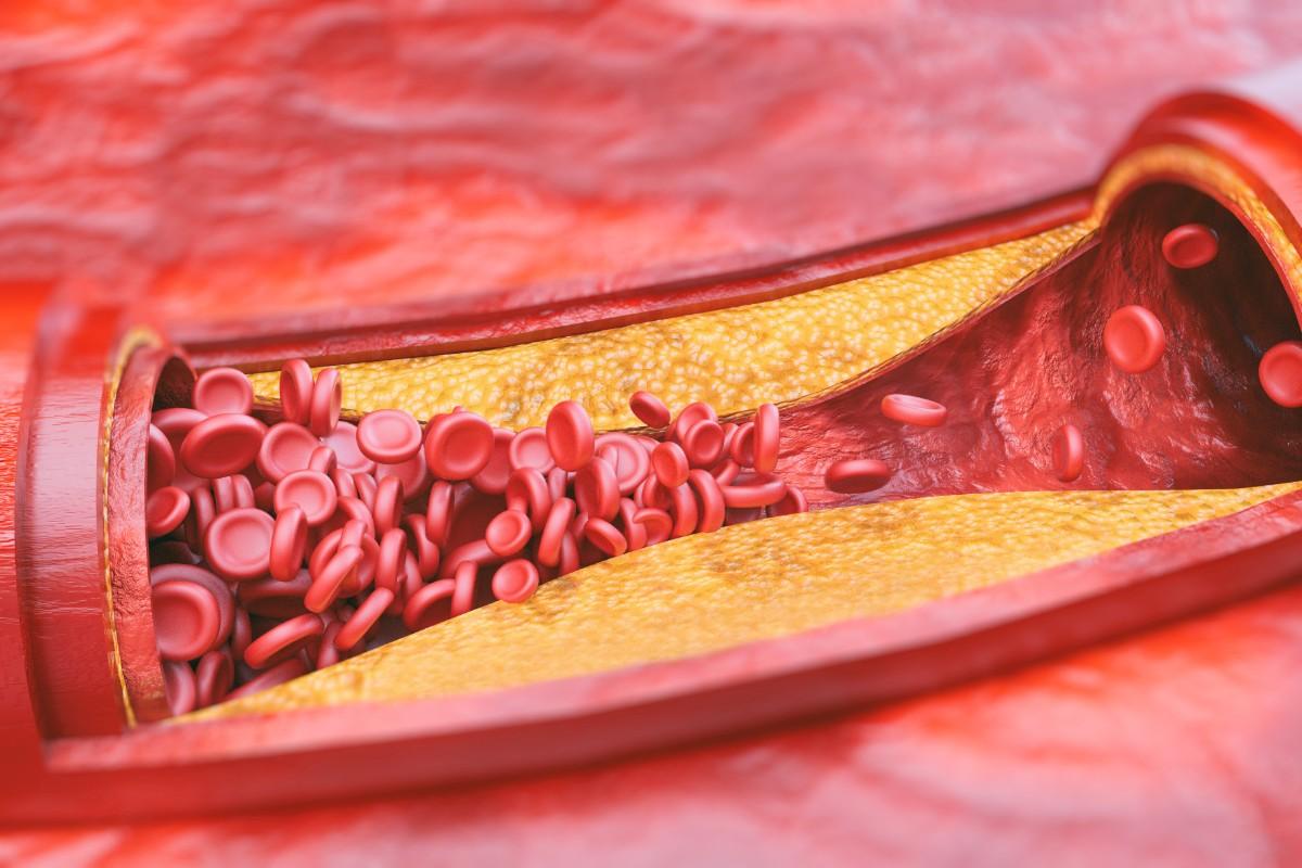 patologías arteriales