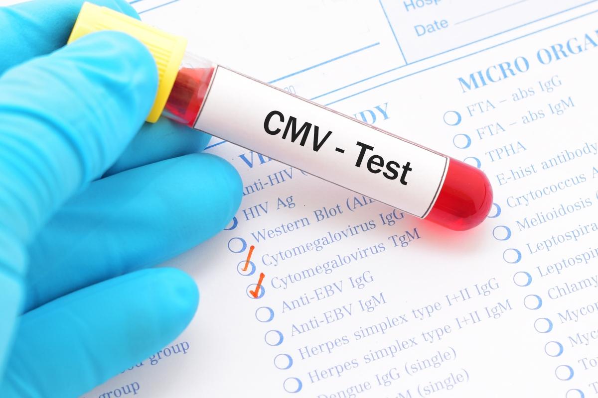 citomegalovirus: prueba