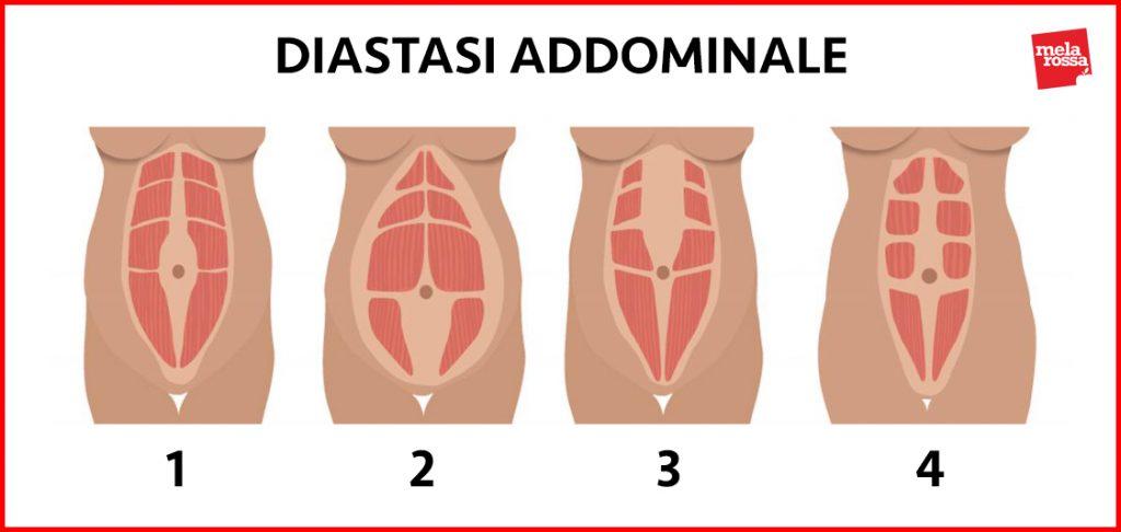 diástasis abdominal: clasificación