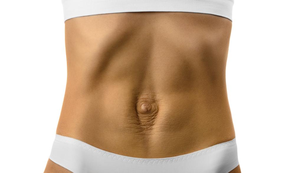 diástasis abdominal: que es