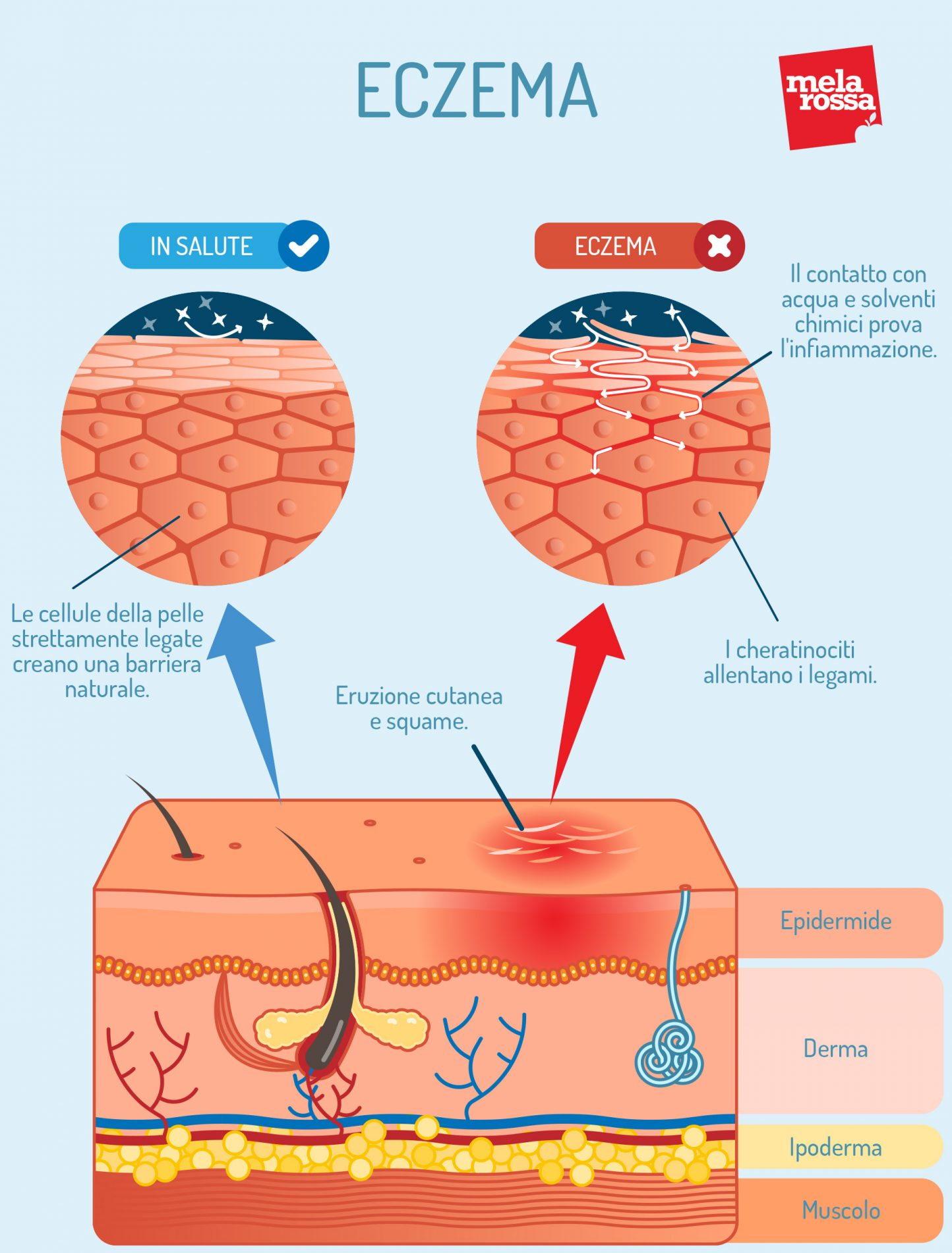 Eczema: que es