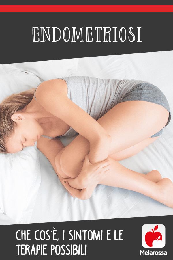 Endometriosis: que es, causas, síntomas y tratamientos