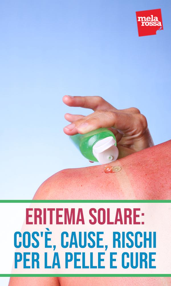 Eritema solar: que es, causas, riesgos, tratamientos