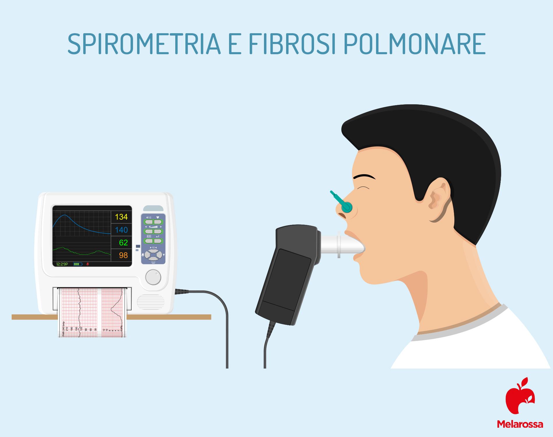 fibrosis pulmonar: espirometría