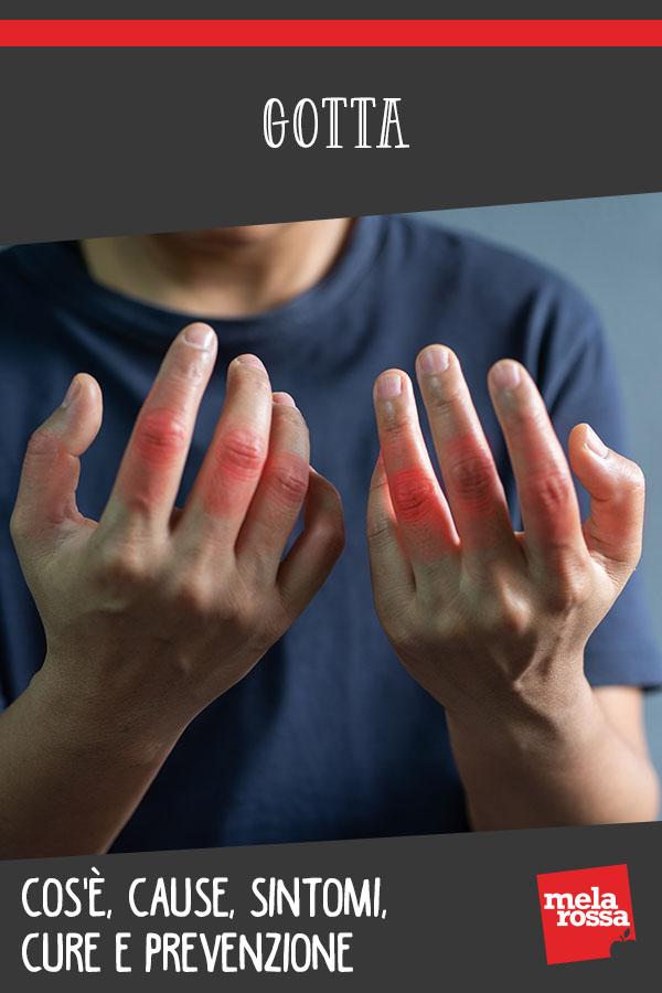 gota: qué es, causas, síntomas y tratamientos