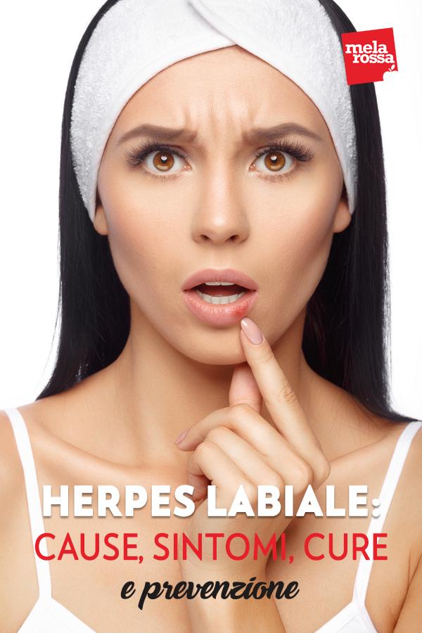 """Herpes labial: los que lo padecen lo saben bien ... cuando el labio tira, cuando aparece ese enrojecimiento y se siente un ligero cosquilleo no hay escapatoria y a las pocas horas aparecen las típicas ampollas del herpes labial o """"fiebre labial"""" . Lo importante es reconocer el problema ante los primeros síntomas e intentar minimizar las molestias con algunos productos específicos. Por otro lado, el herpes labial es un problema muy común, ciertamente desagradable y molesto, pero no grave: 3.700 millones de personas menores de 50 años lo padecen en todo el mundo. Melarossa.it #dietamelarossa"""