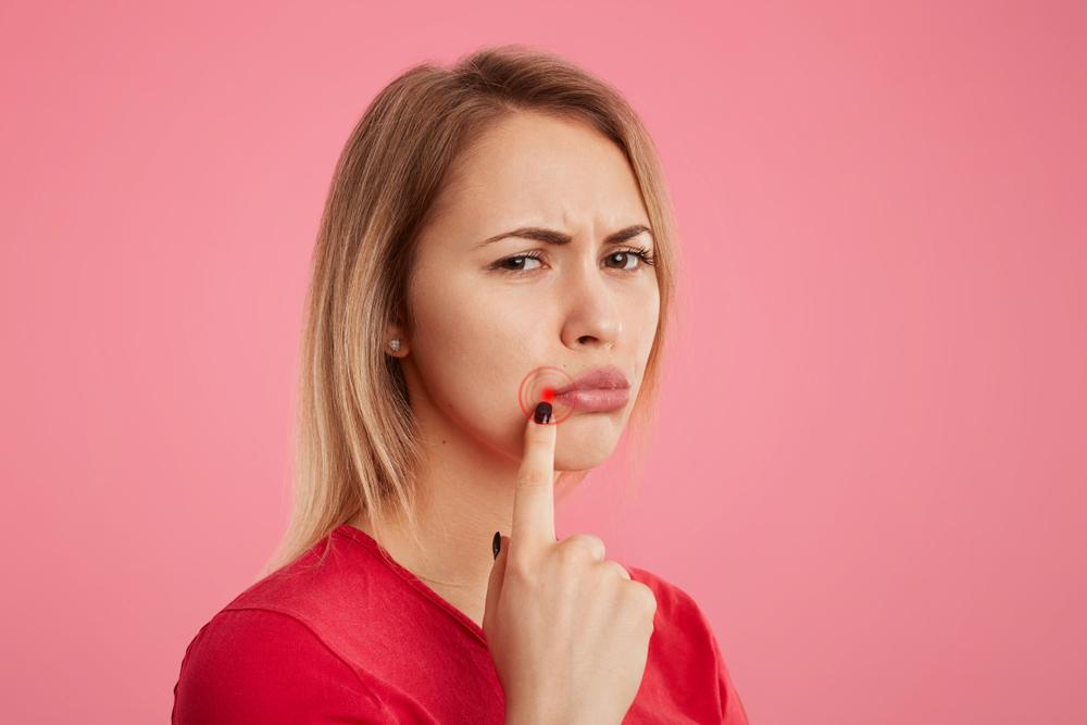 Los síntomas del herpes labial