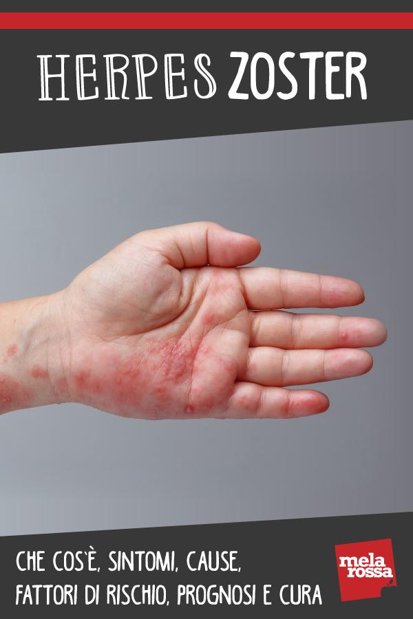 herpes zoster: que es, causas, síntomas y tratamientos