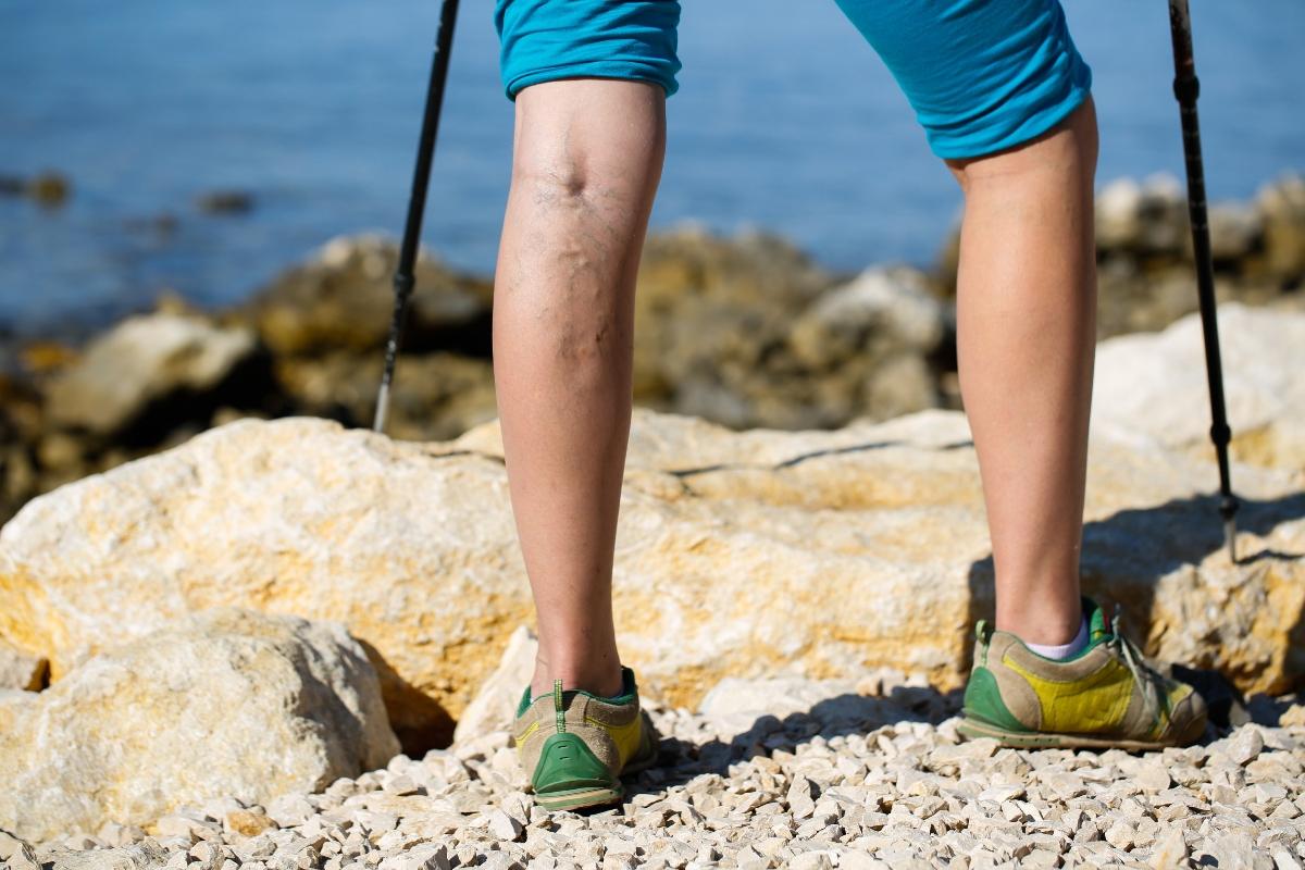 Insuficiencia venosa crónica. qué es, causas, síntomas y complicaciones