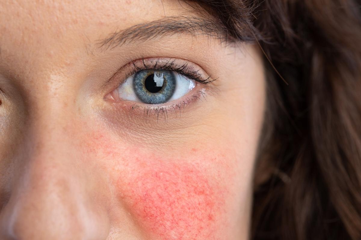 Lupus eritematoso sistémico: causas, síntomas y tratamiento