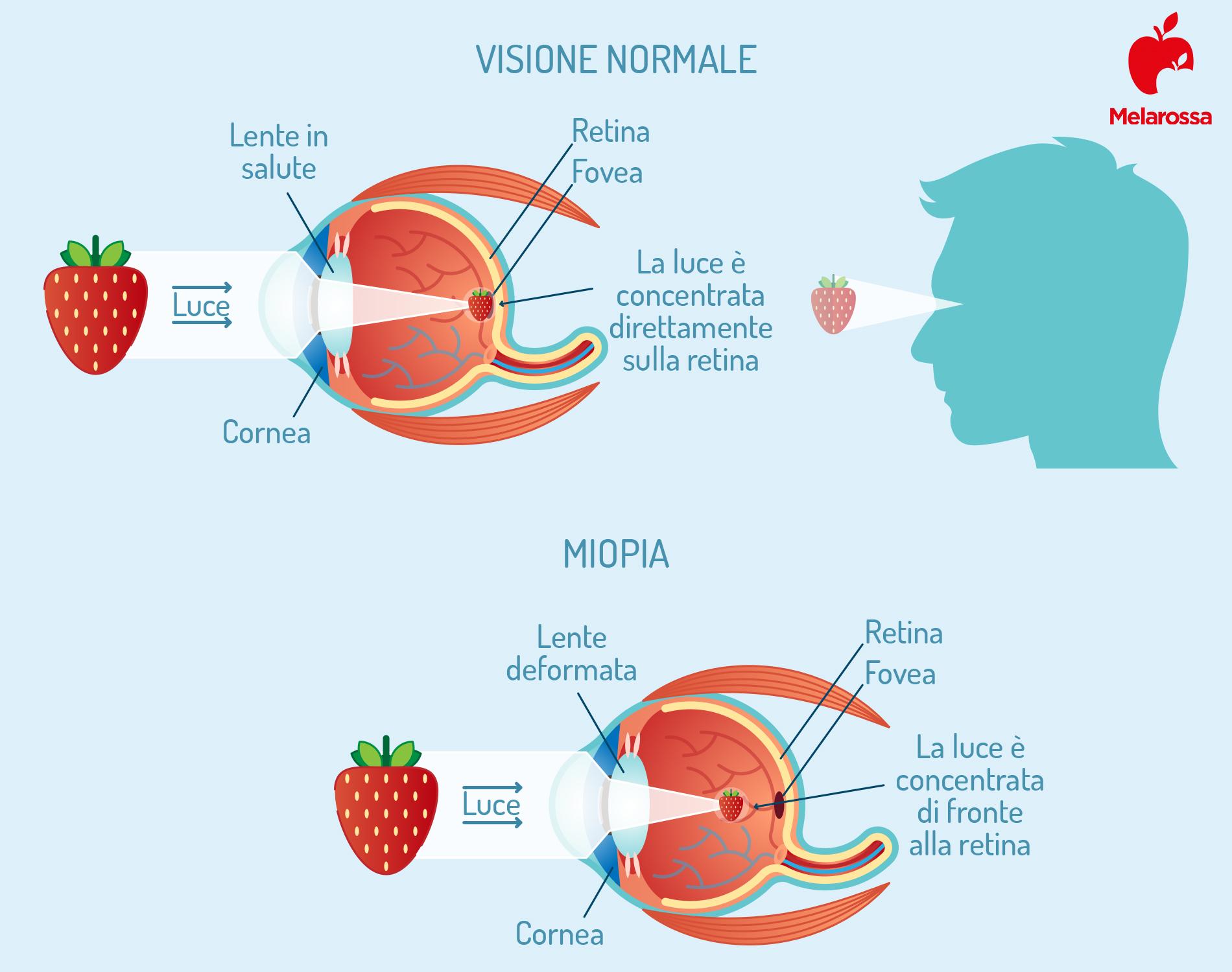 miopía: características