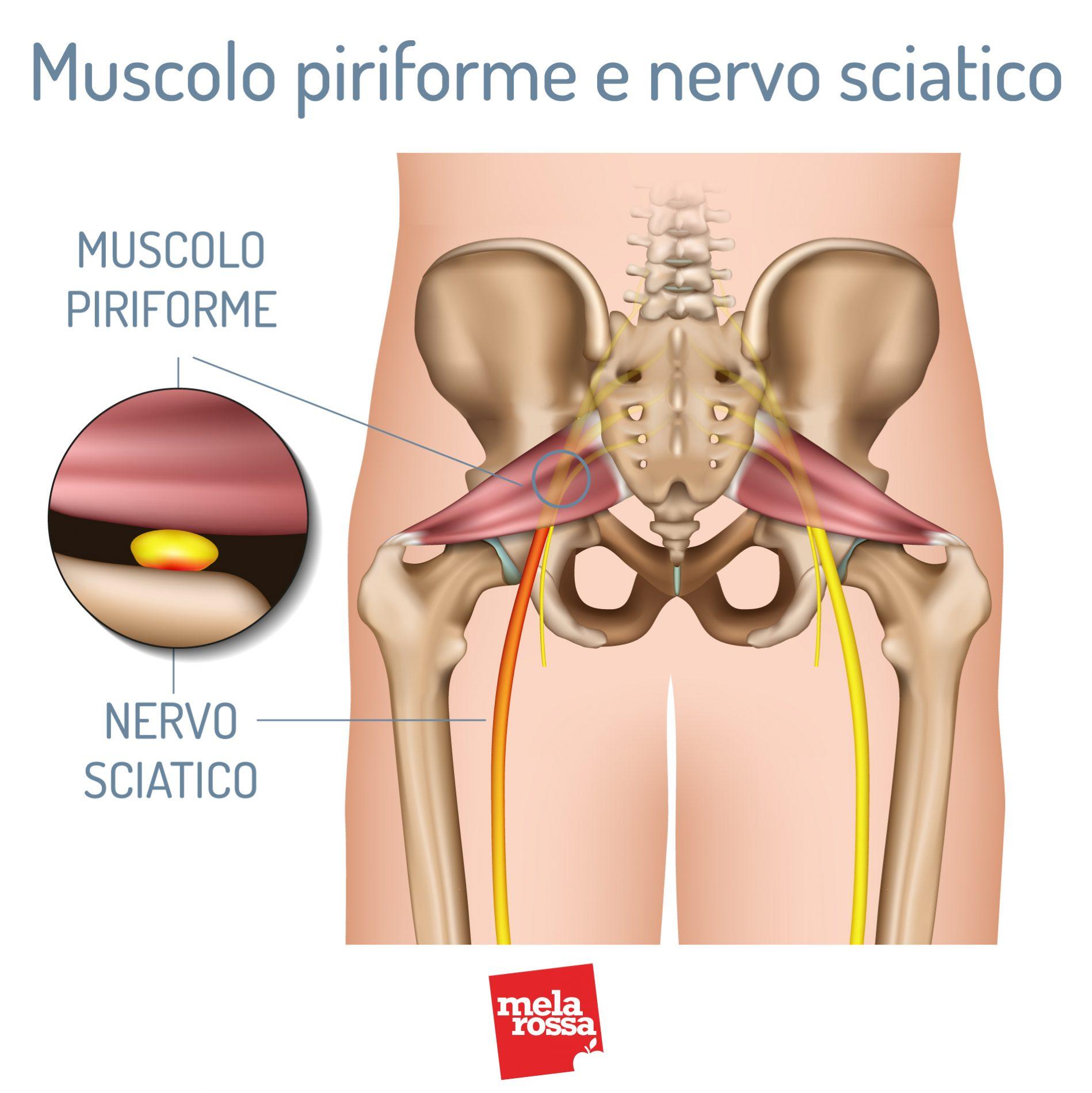 Músculo piriforme y nervio ciático