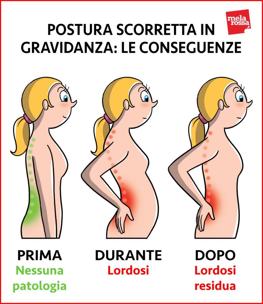 modificaciones del cuerpo materno: postura y dolor de espalda