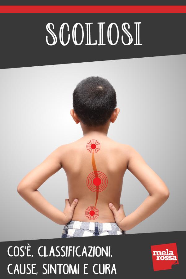 Escoliosis: que es, causas, síntomas y tratamientos
