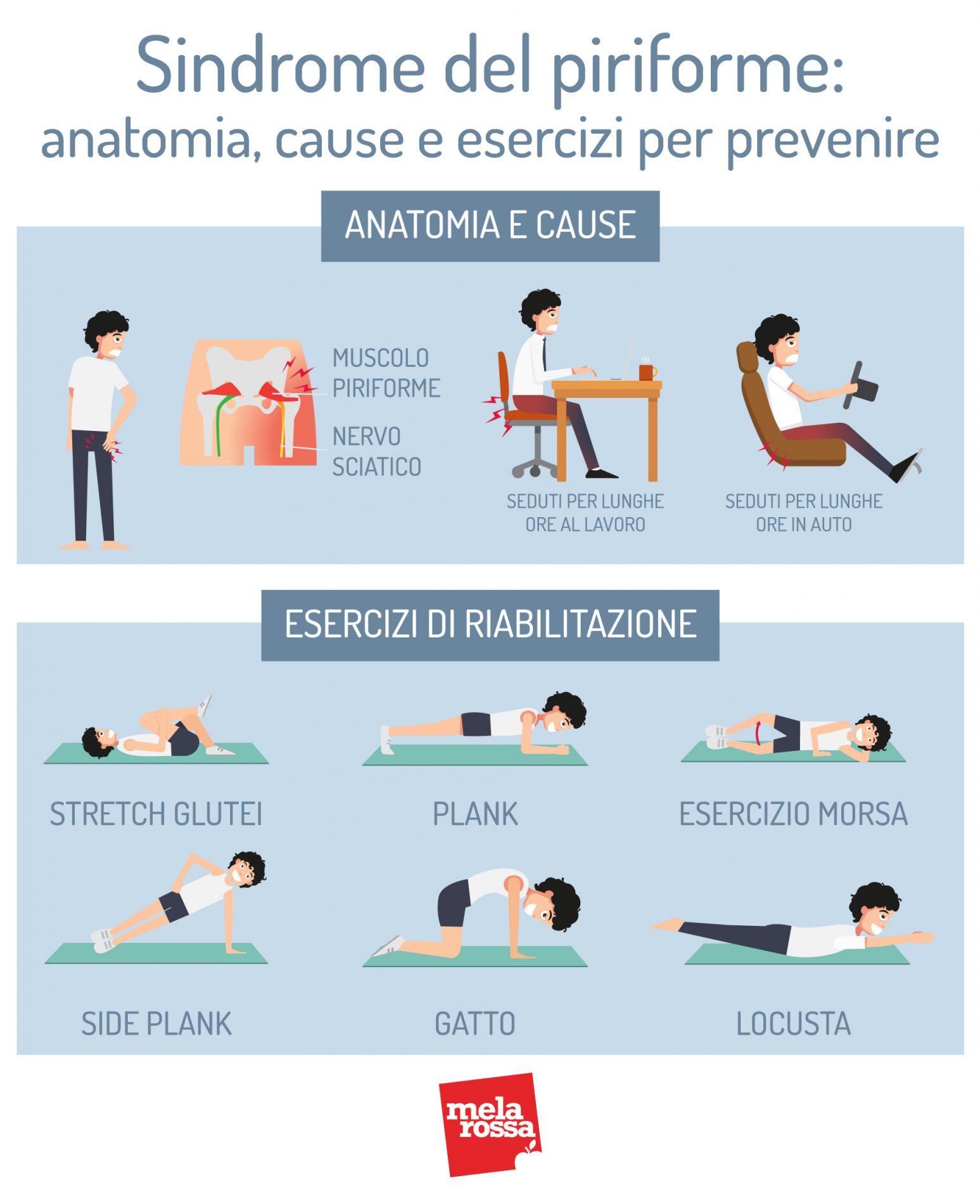 síndrome piriforme: anatomía, causas y ejercicios