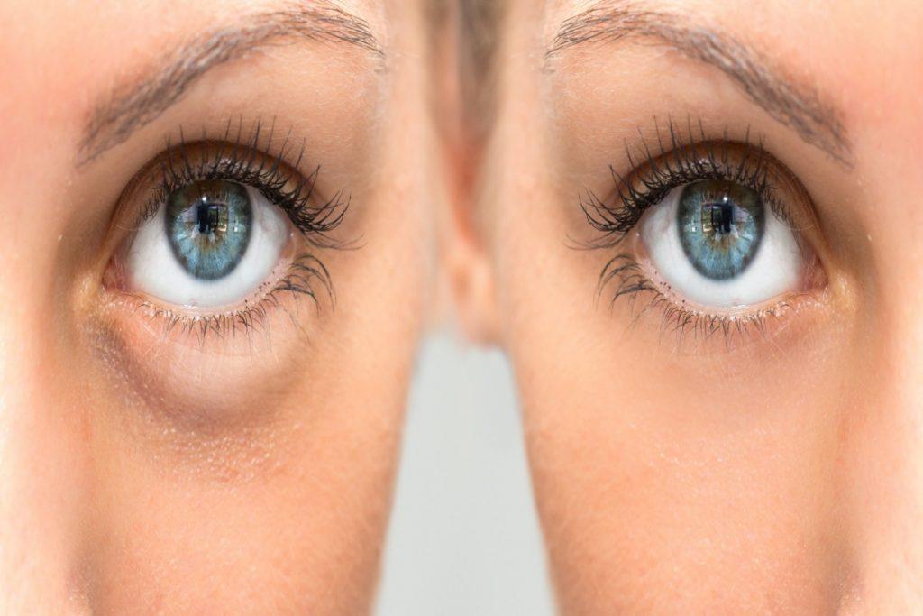 Usos alternativos: tratamientos de belleza con Tecar
