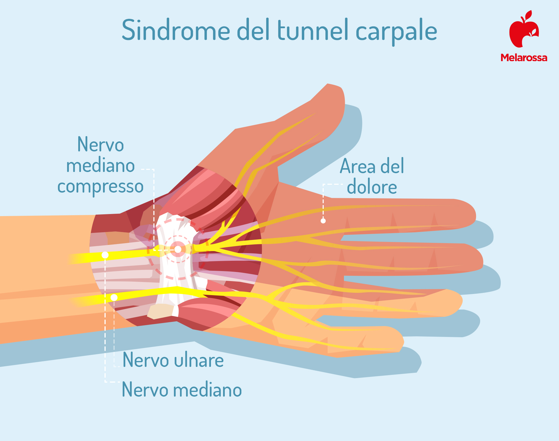 síndrome del túnel carpiano: que es