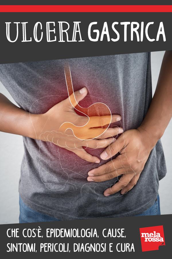 Úlcera gástrica: qué es, síntomas, causas, diagnóstico y tratamiento.