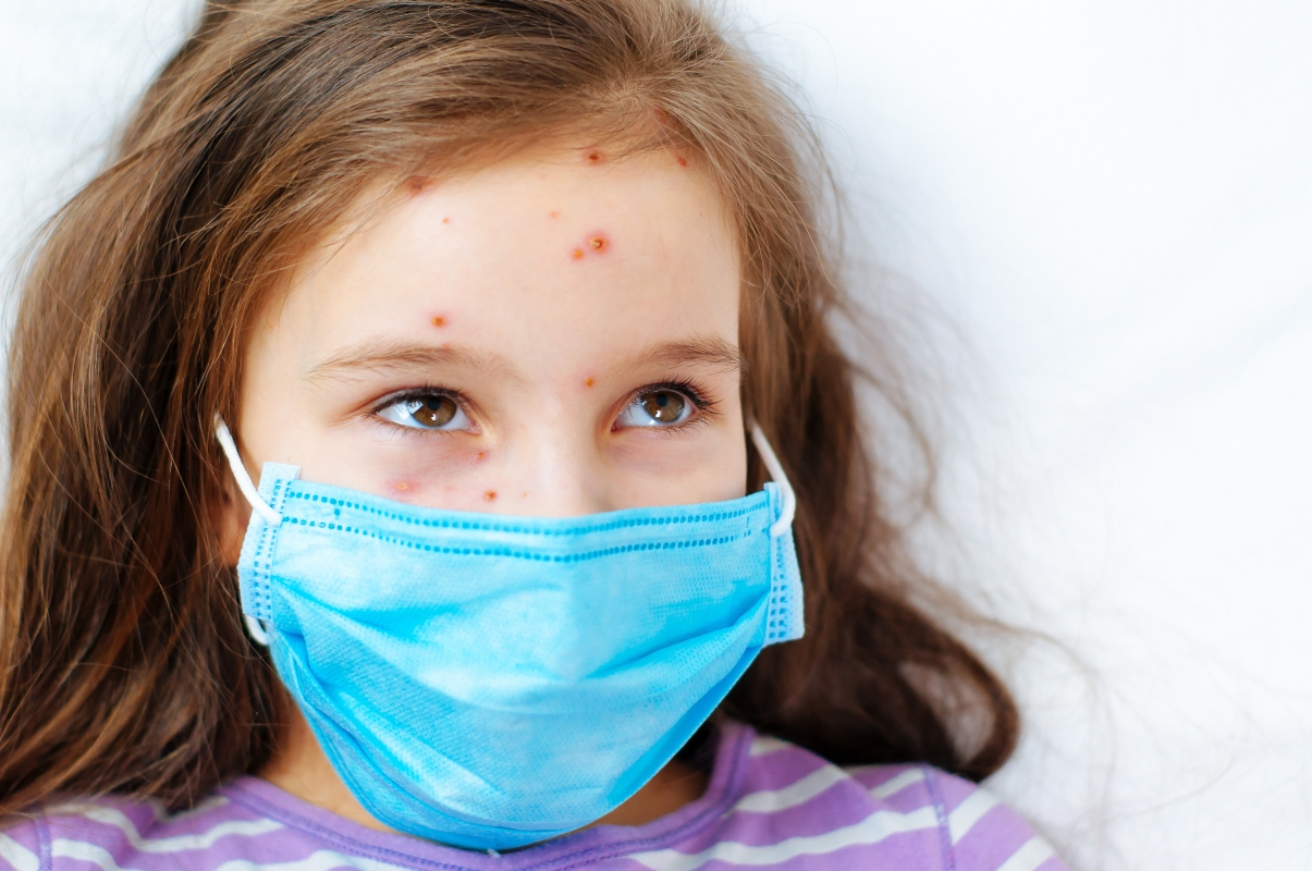 varicela: epidemiología