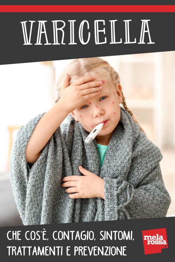 varicela: síntomas y tratamientos